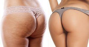 Cellulite – nur 10 Prozent aller Frauen sind nicht davon betroffen. Der Rest...