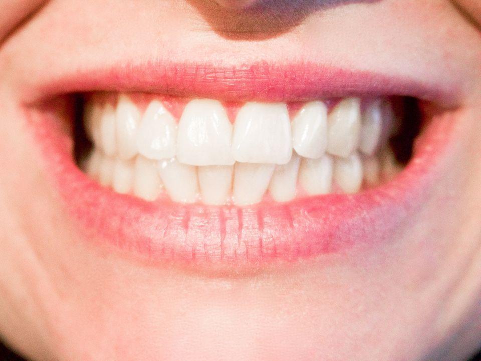 4. Weiße ZähneStudien belegen: Weiße Zähne wirken attraktiver als weniger we...